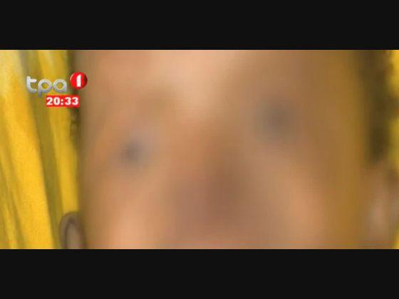 Criança com lábio leporino vai ser operada no Hospital Pediátrico de Luanda